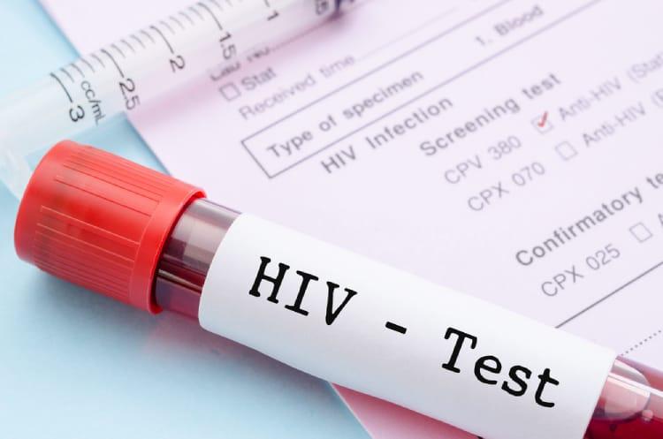 xét nghiệm hiv cho trẻ